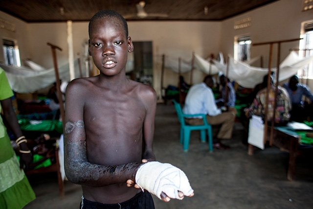 MSF increasingly treats snakebite in its field programmes. This includes 300-400 snakebite victims per year in Paoua, the Central African Republic; and over 300, in Agok, South Sudan in 2014. Many of the victims are children. Photo: Isabel Corthier/MSF