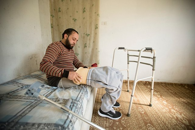 Omar Al Balkhi, 29, is a Syrian war-wounded patient. Photo: MSF