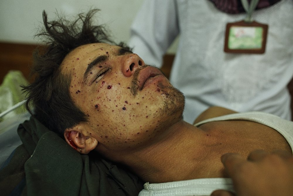 Archive photo (July 2015).  young man with facial wounds sustained when a mortar shell landed nearby is has his wounds cleaned and dressed at MSF Kunduz Trauma Centre. Photo: Andrew Quilty / Oculi/Oculi
