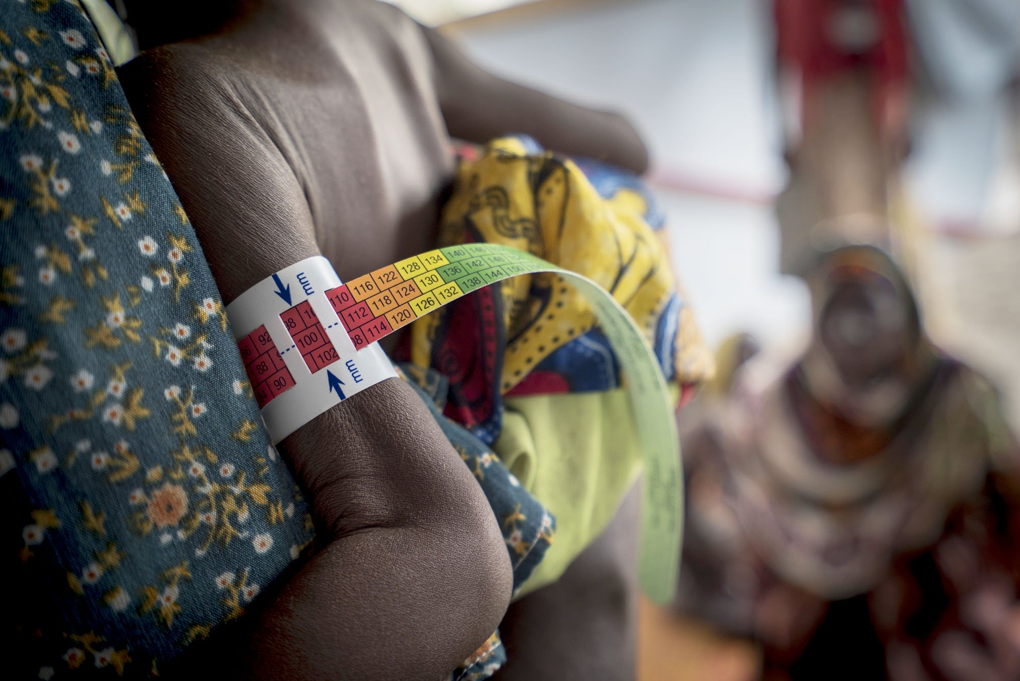 A malnourished child attends the MSF Abirebi ambulatory therapeutic feeding centre with his mother. The coloured band measures his mid-upper arm circumference and gives an indication of how well nourished he is. In this case, the red indicates the child suffers from severe and acute malnutrition. Photo: Ricardo Garcia Vilanova