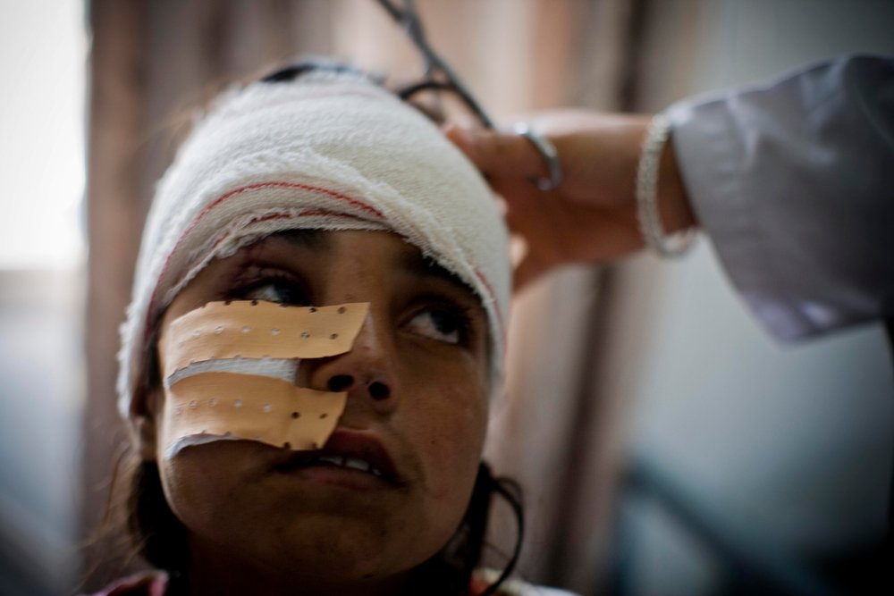 A girl who was injured in a road traffic accident has her head and face bandage in the Emergency Room in Boost Hospital in Afghanistan.