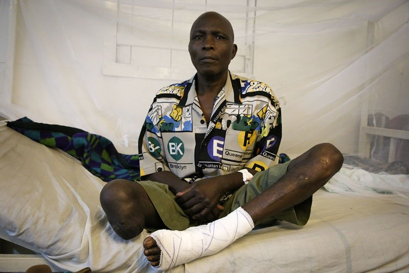 DRC, MSF 10 years project: Jean, 54 years old, gun wounded patient in the Masisi hospital, North Kivu