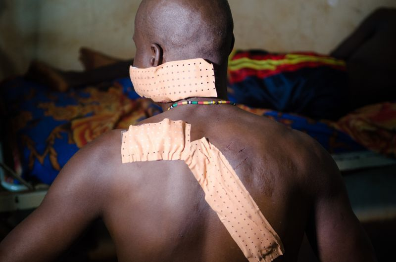 MSF, Doctors Without Borders, Central African Republic,