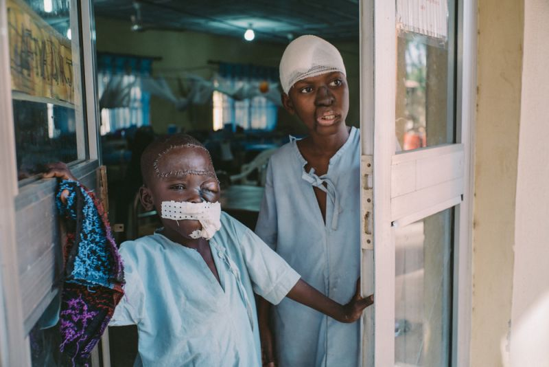 Treating noma disease in Nigeria. Umar, aged eight, survived noma.